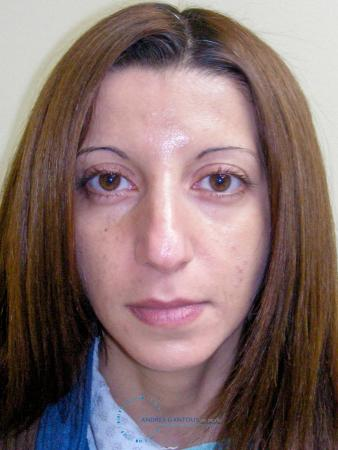 Rhinoplasty: Patient 64 - Before Image 1
