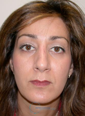 Revision Rhinoplasty: Patient 19 - After Image 1