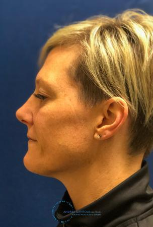 Rhinoplasty: Patient 71 - After Image 6
