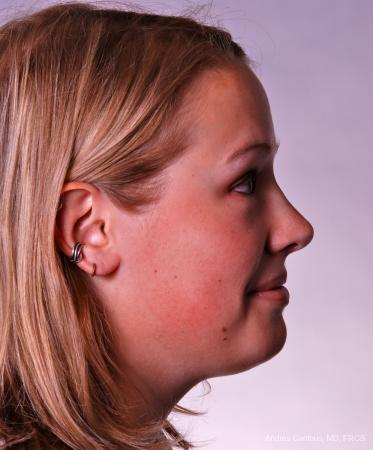 Reconstructive Rhinoplasty: Patient 3 - After Image 4