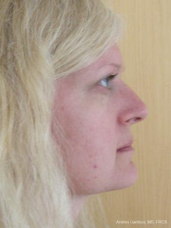 Rhinoplasty: Patient 46 - Before Image 3