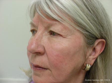 Eyelid Lift: Patient 9 - Before Image 4