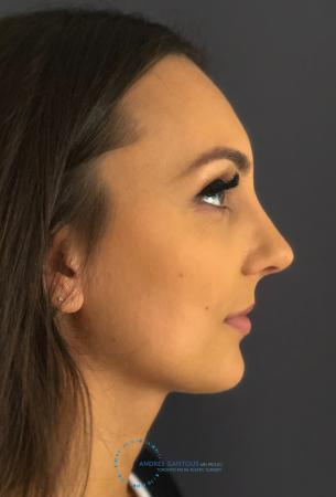 Rhinoplasty: Patient 12 - After Image 6