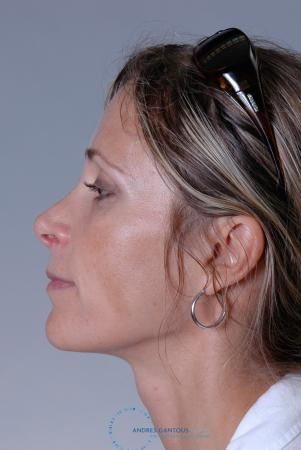 Revision Rhinoplasty: Patient 19 - Before and After Image 4