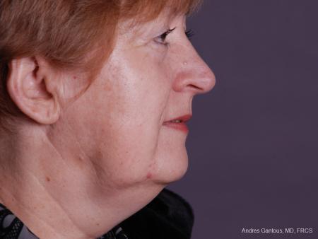 Facelift & Neck Lift: Patient 9 - After Image 3