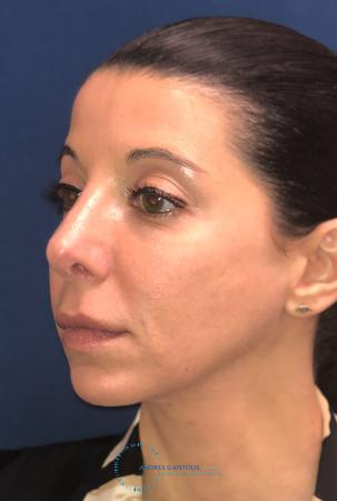 Rhinoplasty: Patient 64 - After Image 3