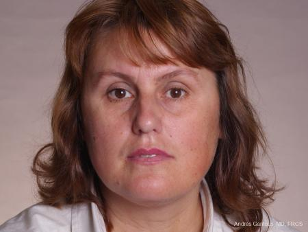 Rhinoplasty: Patient 49 - Before Image 1