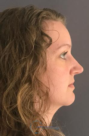 Rhinoplasty: Patient 64 - After 6