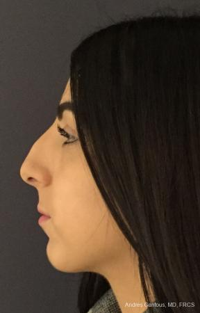 Rhinoplasty: Patient 87 - Before and After Image 6
