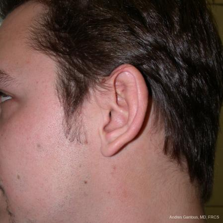 Otoplasty And Earlobe Repair: Patient 1 - Before Image 3
