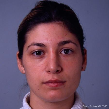 Rhinoplasty: Patient 33 - After Image 1