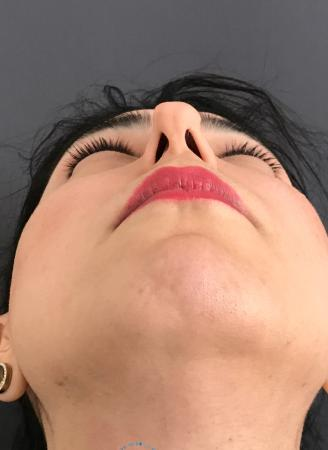 Revision Rhinoplasty: Patient 18 - Before Image 2