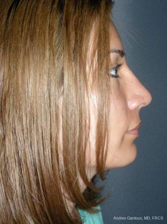 Rhinoplasty: Patient 58 - After Image 3