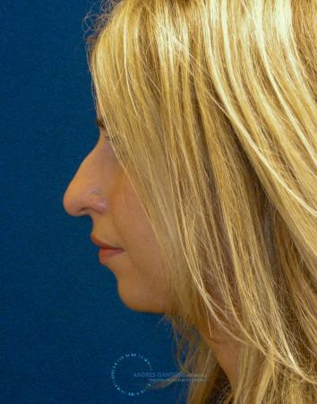 Rhinoplasty: Patient 76 - Before Image 4