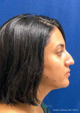 Rhinoplasty: Patient 84 - Before Image 5
