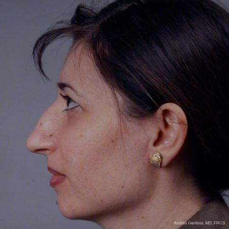 Rhinoplasty: Patient 42 - Before and After Image 5