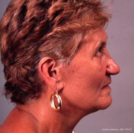 Facelift & Neck Lift: Patient 8 - After Image 2