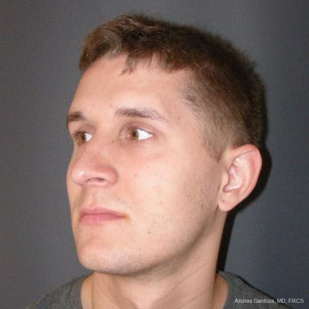 Rhinoplasty: Patient 50 - After Image 4