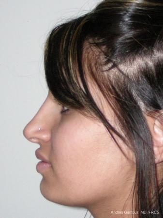 Rhinoplasty: Patient 29 - After Image 4