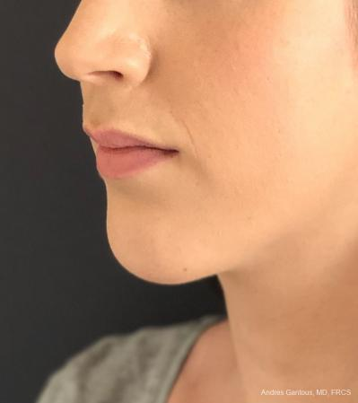 Chin Augmentation: Patient 6 - After Image