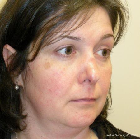 Reconstructive Rhinoplasty: Patient 5 - Before Image 2