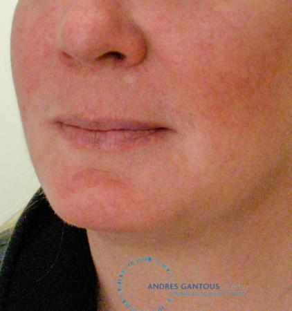 Chin Augmentation: Patient 9 - After Image 2