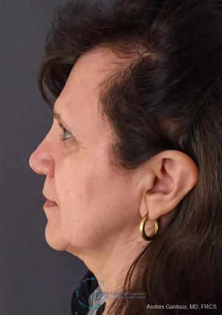 Rhinoplasty: Patient 98 - After Image 6