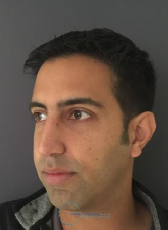 Rhinoplasty: Patient 79 - After Image 4