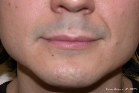 Chin Augmentation: Patient 1 - Before Image